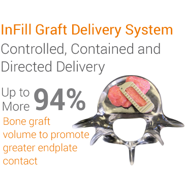 InFill Graft Delivery System. Controlled, Contained and Directed Delivery. Up to 94% More Bone graft volume to promote greater endplate contact